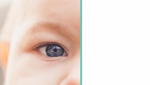Art oculaire prend en charge des patients après rétinoblastome.