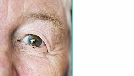 Appareillage après chirurgie mutilante par oculariste bordelais Thibaut RICHON.