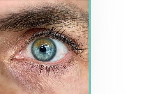 Appareillages de patients par prothèses oculaires par la société Art Oculaire en Gironde.